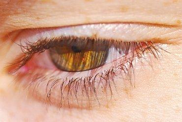 Operace horních či dolních očních víček je druhým nejčastějším zákrokem u žen.