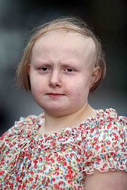 Britská školačka ztratila vlasy stresem kvůli školní šikaně