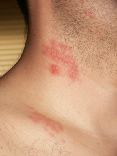 Herpes zoster heilt nicht