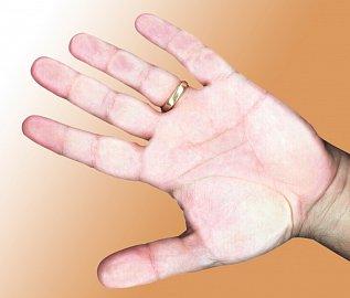 Prsty nejenom brní, ale také bělají, až zmodrají a jsou necitlivé
