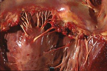 endokarditida, zánět srdečních chlopní