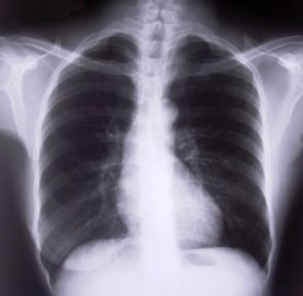 astma plice