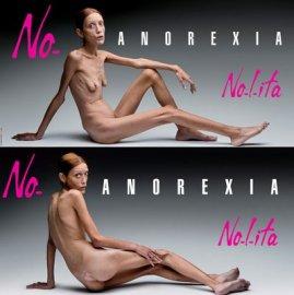 Modelka Isabelle Caro nafotila billboardy proti anorexii. Tři roky po jejich pořízení zemřela ve věku 28 let.