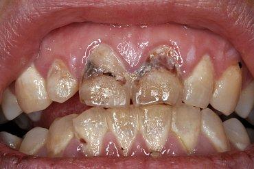 Tetracyklin ničí zubní sklovinu, a způsobuje nevratné zažloutnutí zubů.