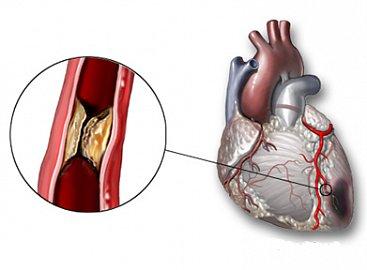 angina pectoris, srdce, tepny