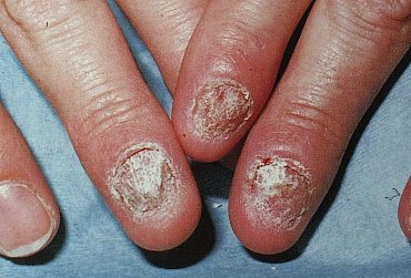 onychomykóza, plíseň nehtů