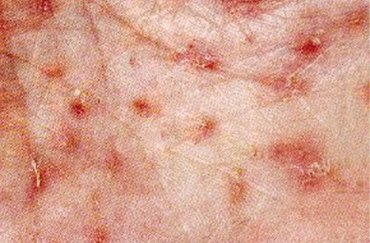 svrab vyrážka kůže