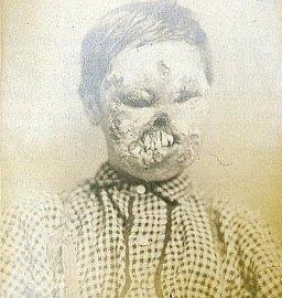 Syfilis (lued, příjice)