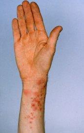 Nemoc v rozvinutém stadiu.