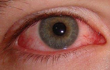 zánět spojivek, alergická konjunktivitida, oči, oční alergie