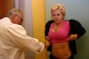 zdravi-nemoci-liposukce