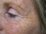 Botox: Odstranění vrásek