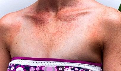 Vitalia.cz: Za sluncem: Co pomůže při alergii?