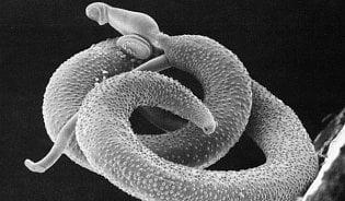Nehledejme za vším parazity, říká specialista