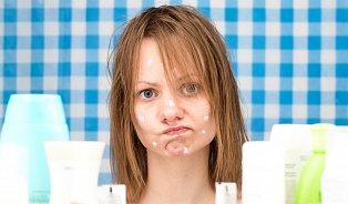 Pastinák zklidní kožní neduhy a akné