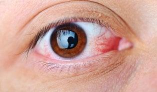 7nemocí očí, které se musí léčit včas