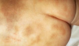 Hemofilie je genderově nekorektní