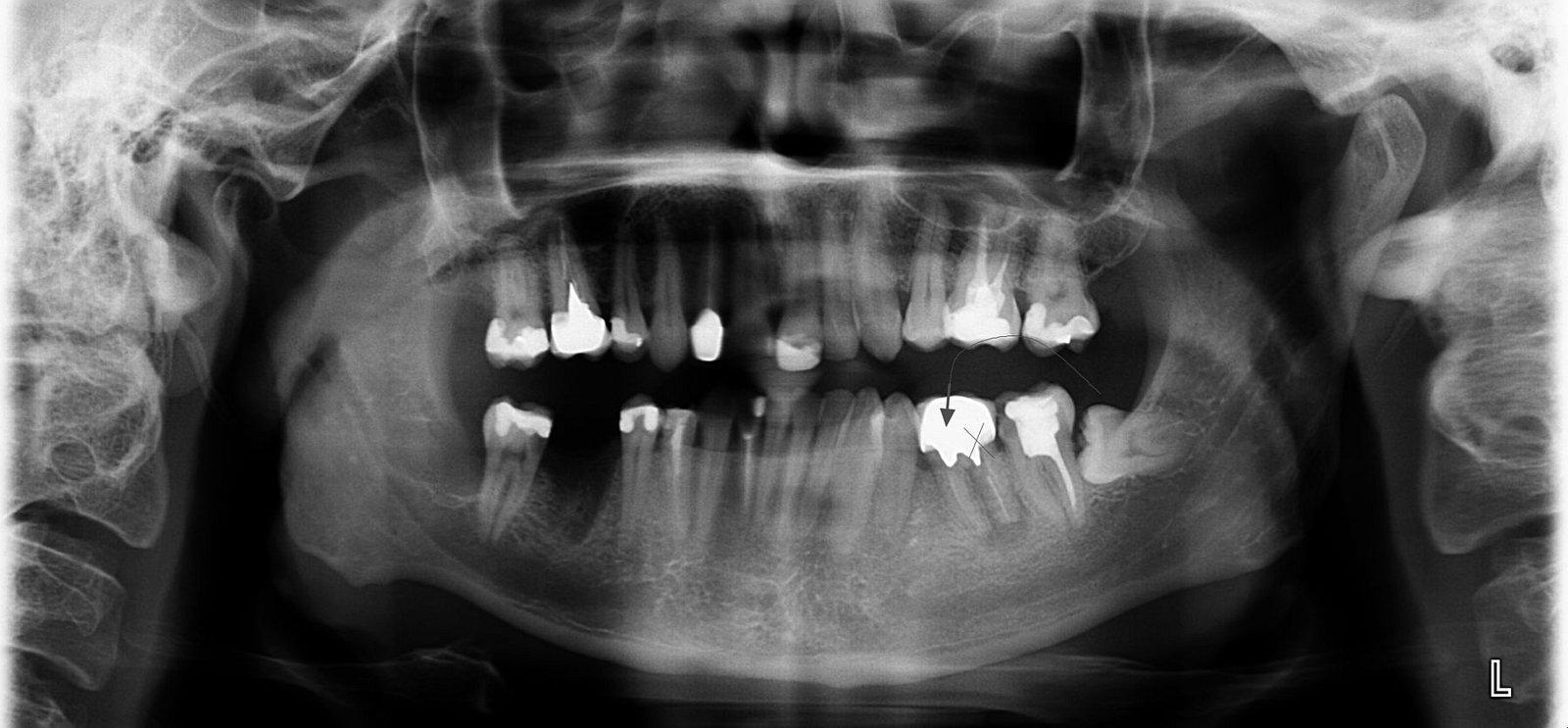 Transplantace zubu