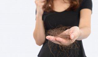 Půl roku léčení stálo dvacet tisíc, nepřibyl ani vlas