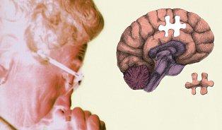 Test demence: Nejde jen ostařeckou zapomnětlivost