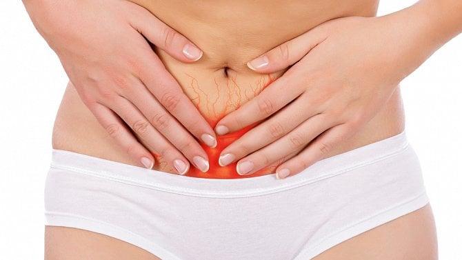 Normální menstruace nemá bolet
