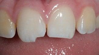 Úraz nebo bolest zubu během dovolené? Co můžete udělat
