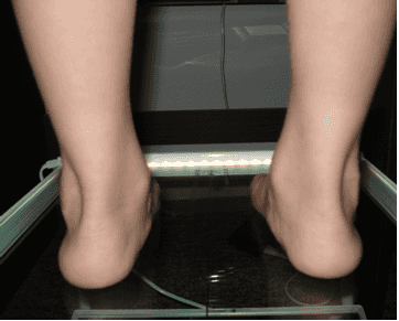 Ploché nohy: Jen pětina dětí má v normě nožku i pohybový aparát