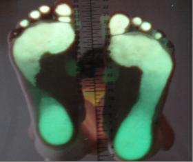 Asymetrické zatížení nohy