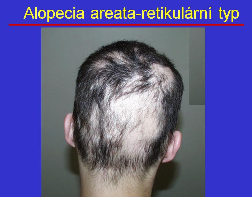 Alopecia areata: Když vlasy padají po trsech