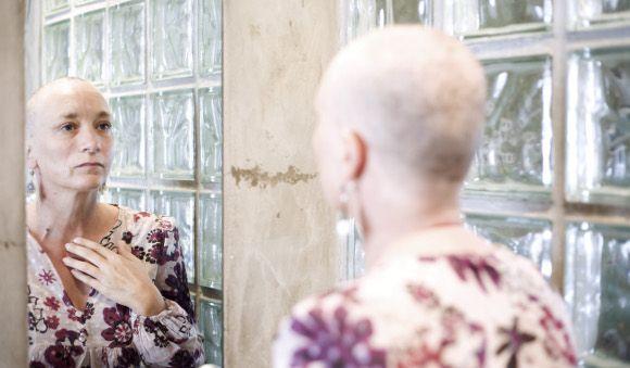 Chemoterapie a ztráta vlasů