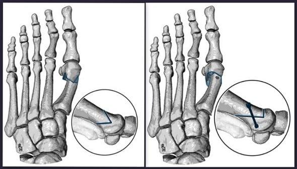 Operace dle Austina vlevo, kdy se k fixaci vzájemné pozice palce používá vklínění; Vpravo modernější metoda L chevron fixovaná jedním šroubem.