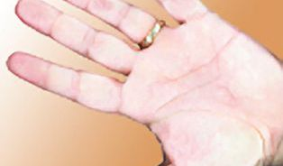 Brní vás prsty? Možná za to mohou cévy, možná počítač