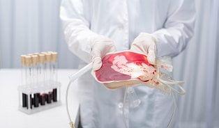 Odběr pupečníkové krve– ano, či ne?