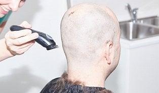 Vitalia.cz: Video: Jak probíhá transplantace vlasů