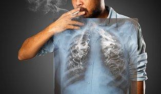Na rakovinu plic umírá vČesku 8z10nemocných