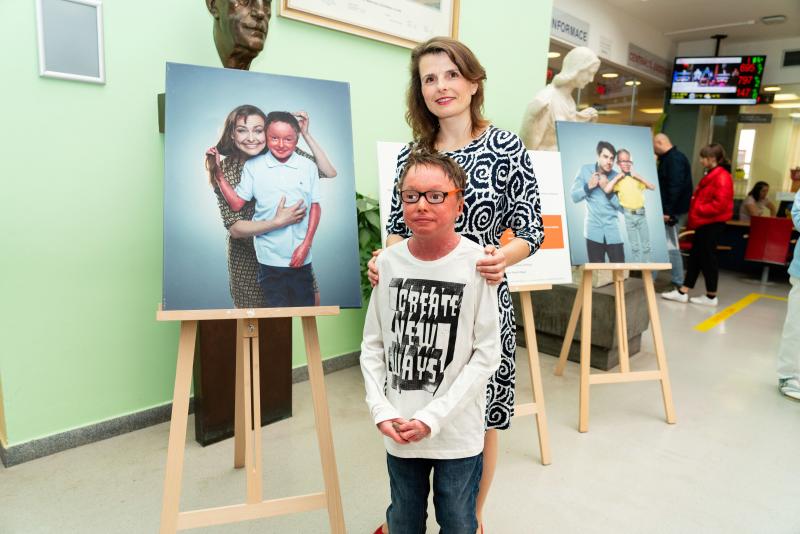 Nemoc zvaná ichtyóza – výstava v Dětské nemocnici FN Brno
