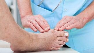 120na80.cz: Vbočený palec: možnosti léčby