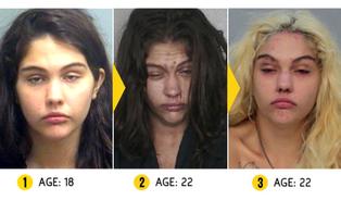 Drogy změní tváře narkomanů během pár let