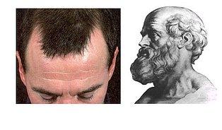 Alopecie: Proč mají muži kouty aženy ne?