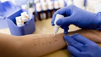 Zkřížené alergie: časté je třeba spojení alergie na břízu a najablka