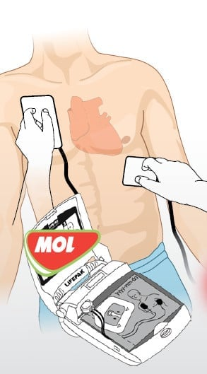 Automatizovaný externí defibrilátor (AED)