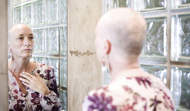 Chemoterapie bez vypadání vlasů  Ano 21d62614fc