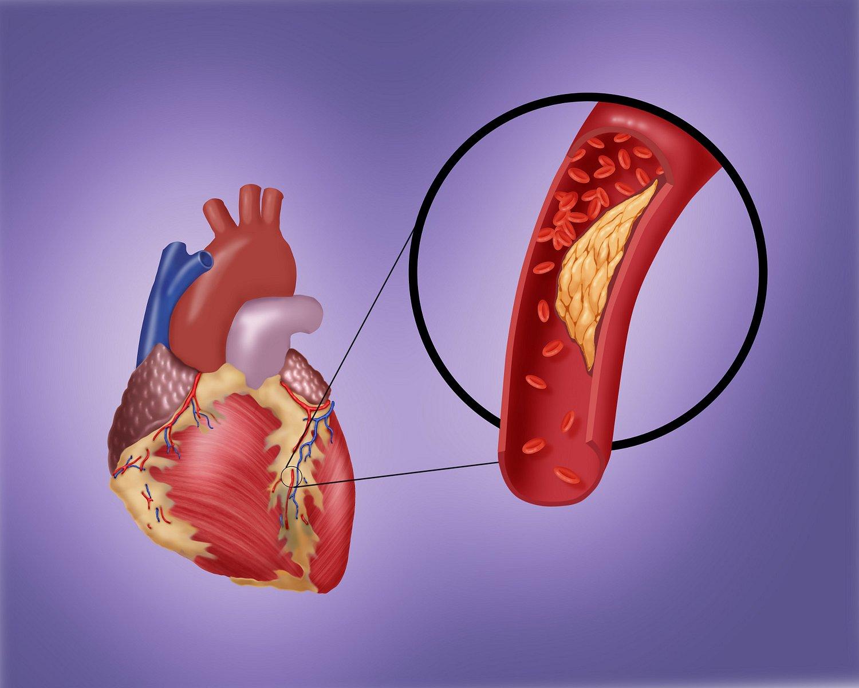Vrozený vysoký cholesterol - familiární hypercholesterolémie FH