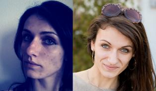 Dermatilománie: Vždyť jsem si říkala, že dnes už se škrábatnebudu