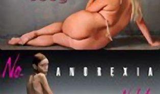 První anorektička světa: Omylem v cizím těle