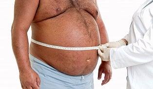 Obézní člověk má nárok na léčbu. Ale nejprve musí zhubnout