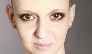 Lucie Bittalová zemřela. Vyzývala kprevenci rakoviny děložníhočípku