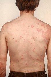 Po suši vám může naskákat kopřivka coby alergická reakce na histamin.