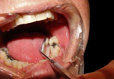 Když vám trnou zuby, jen zubař pomůže odhalit, jestli jde rovnou o kaz nebo o citlivost krčků či jinou chorobu.