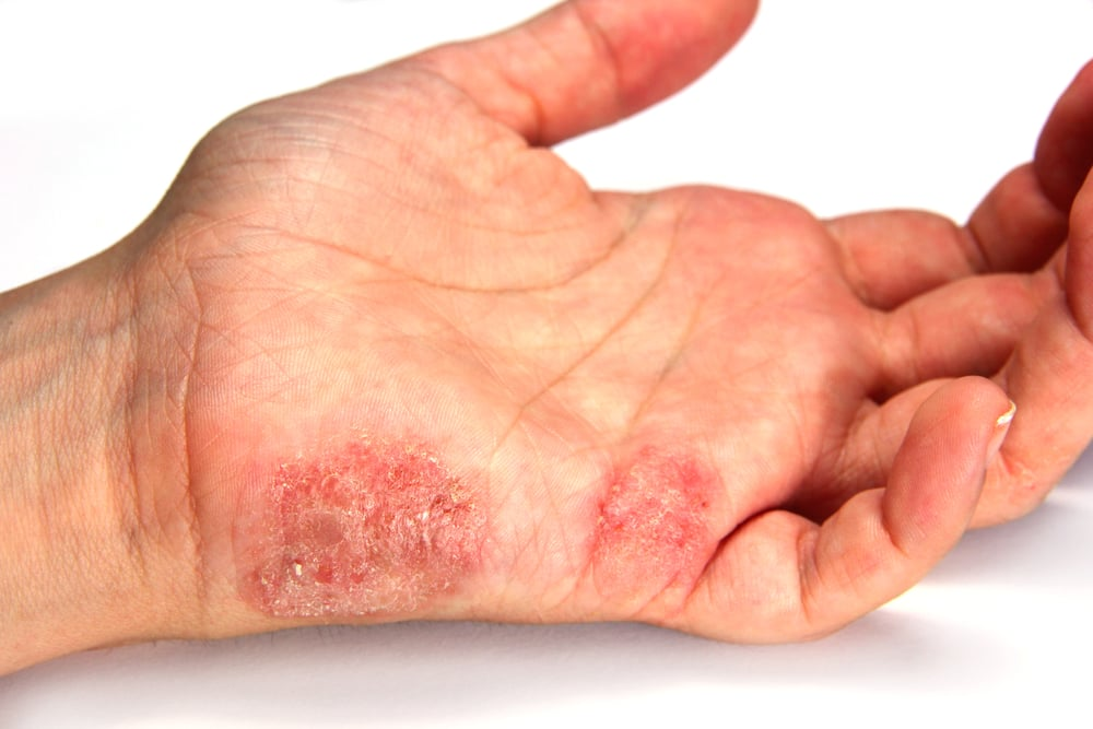 Lupénka (psoriasis)